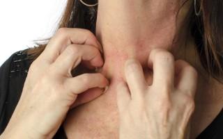 Аллергия на мёд, проявление, симптомы и лечение