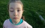Эффективное лечение и профилактика при укусе осы в глаз