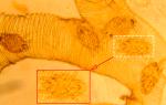 Диагностика и лечение акарапидоза у пчел